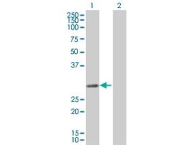 Mouse Anti-SLA Antibody