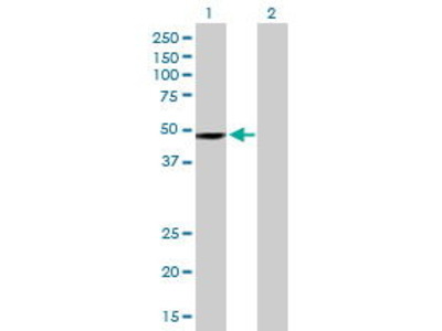 Mouse Anti-CHKA Antibody