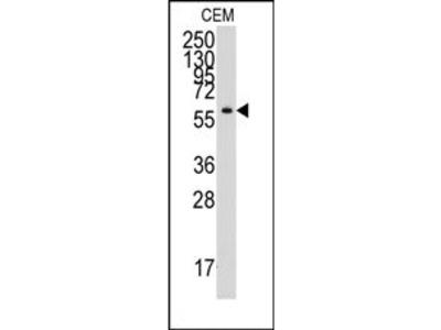 anti YARS (C-term)