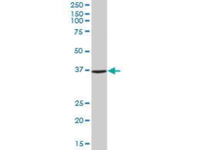 Mouse Anti-ANXA2 Antibody