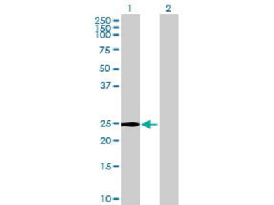 Mouse Anti-C2orf7 Antibody