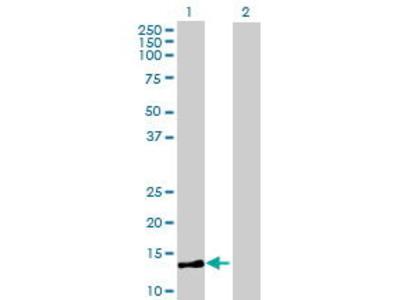 Mouse Anti-MRPL36 Antibody