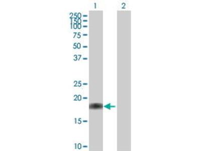Mouse Anti-BIT1 Antibody