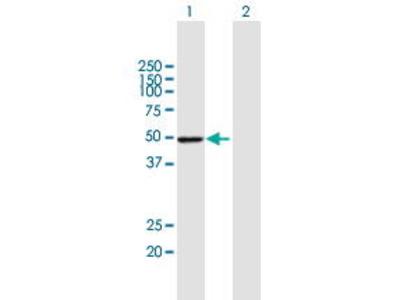 Mouse Anti-PSMD4 Antibody