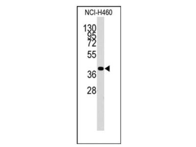 anti Chondromodulin-1 (C-term)