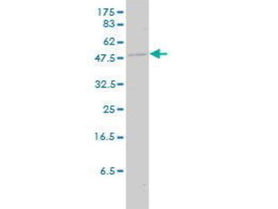 Mouse Anti-KRT23 Antibody