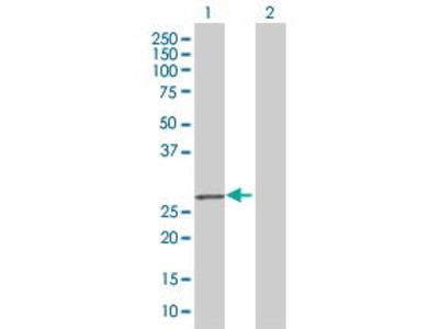 Mouse Anti-KLK7 Antibody
