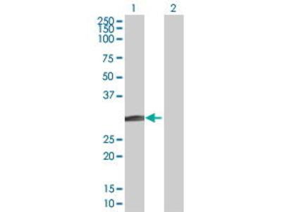 Mouse Anti-BCL7B Antibody