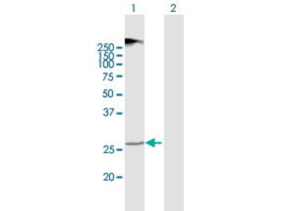 Mouse Anti-TMEM38A Antibody