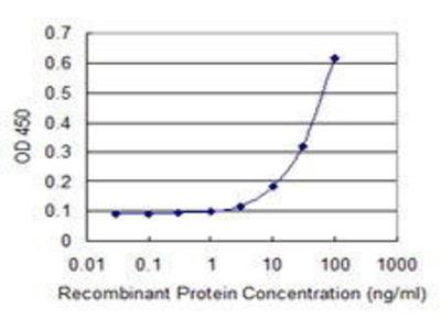 Mouse Anti-TIMM8B Antibody