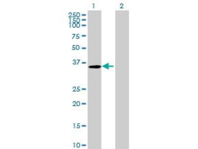 Mouse Anti-RP11-262D11.5 Antibody