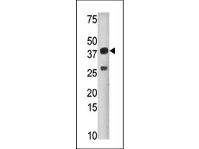 anti SULT1C4 / SULT1C2 (N-term)