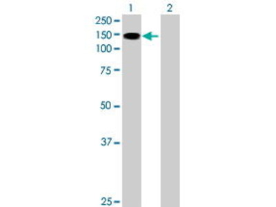 Mouse Anti-SIK2 Antibody