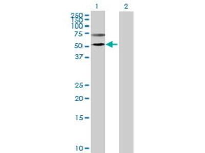 Mouse Anti-TMPRSS5 Antibody