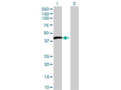 Mouse Anti-TITF1 Antibody