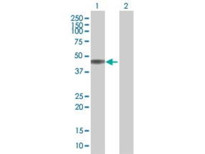 Mouse Anti-KIR2DL3 Antibody