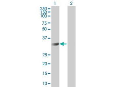 Mouse Anti-CMTM2 Antibody