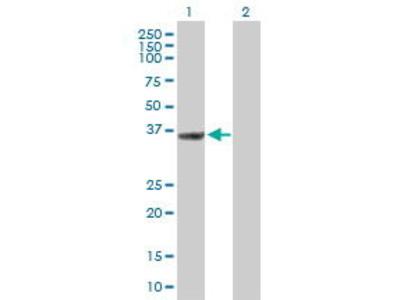Mouse Anti-THOC6 Antibody