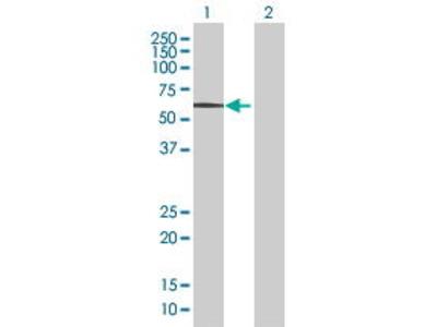 Mouse Anti-EGR2 Antibody