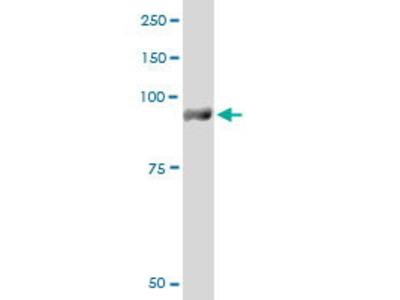 Mouse Anti-PYGM Antibody