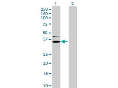 Mouse Anti-NDUFAF1 Antibody