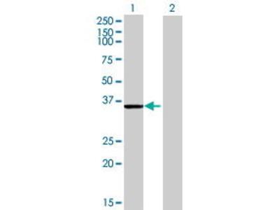 Mouse Anti-CDK4 Antibody