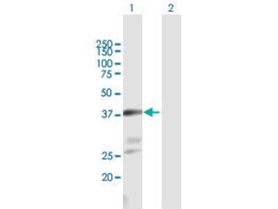 Mouse Anti-NKX2-1 Antibody