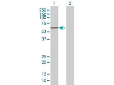 Mouse Anti-SOX30 Antibody