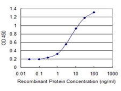 Mouse Anti-CENPJ Antibody