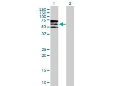 Mouse Anti-PIP5K3 Antibody