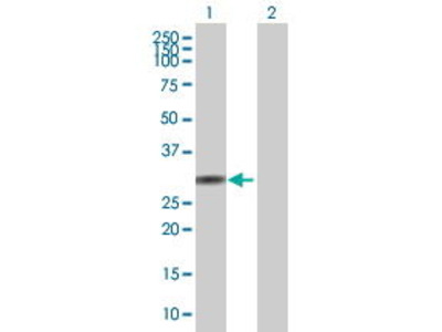 Mouse Anti-WBSCR28 Antibody