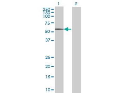 Mouse Anti-FCRL1 Antibody