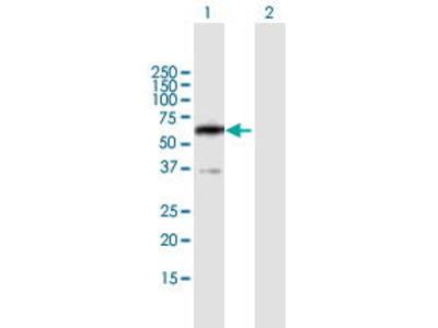 Mouse Anti-PPP2R5B Antibody