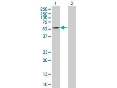 Mouse Anti-TTC8 Antibody