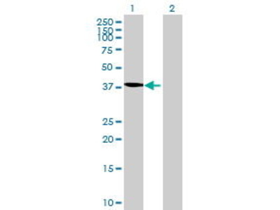 Mouse Anti-TBC1D20 Antibody