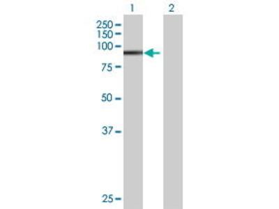Mouse Anti-ZNF606 Antibody