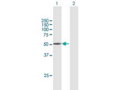 Mouse Anti-PPP2R3C Antibody