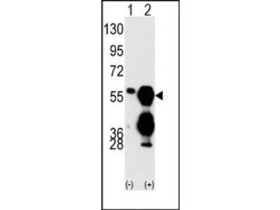 PPM1F (C-term) rabbit polyclonal antibody, Purified