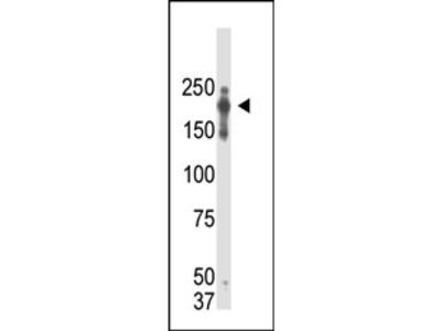 anti PRDM2 (1-347)