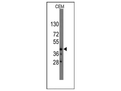 anti QKI / Protein quaking (N-term)