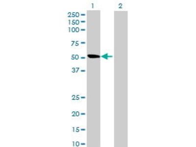 Mouse Anti-ALDH1L2 Antibody