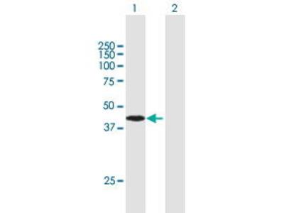 Mouse Anti-ARMC8 Antibody