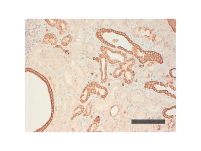 Mouse Anti-Cytokeratin AE1 Antibody