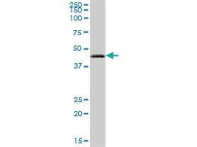Mouse Anti-RAB3IL1 Antibody