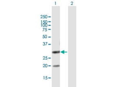 Mouse Anti-DUT Antibody