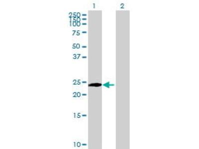 Mouse Anti-PIP5K1C Antibody
