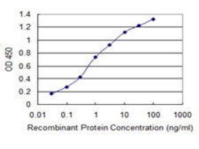 Mouse Anti-PIP4K2C Antibody