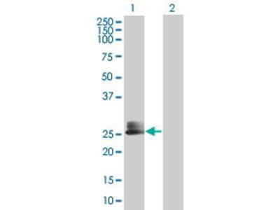 Mouse Anti-PCOLN3 Antibody