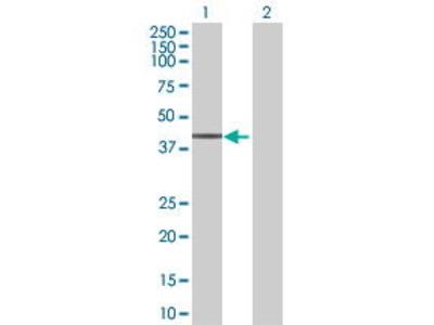 Mouse Anti-PRKACG Antibody