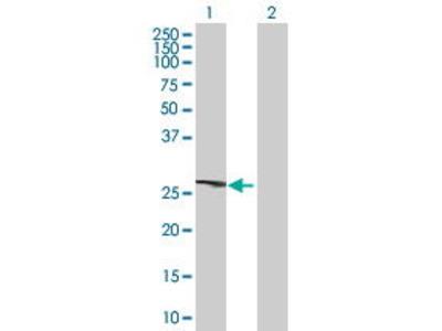 Mouse Anti-CCNB1IP1 Antibody